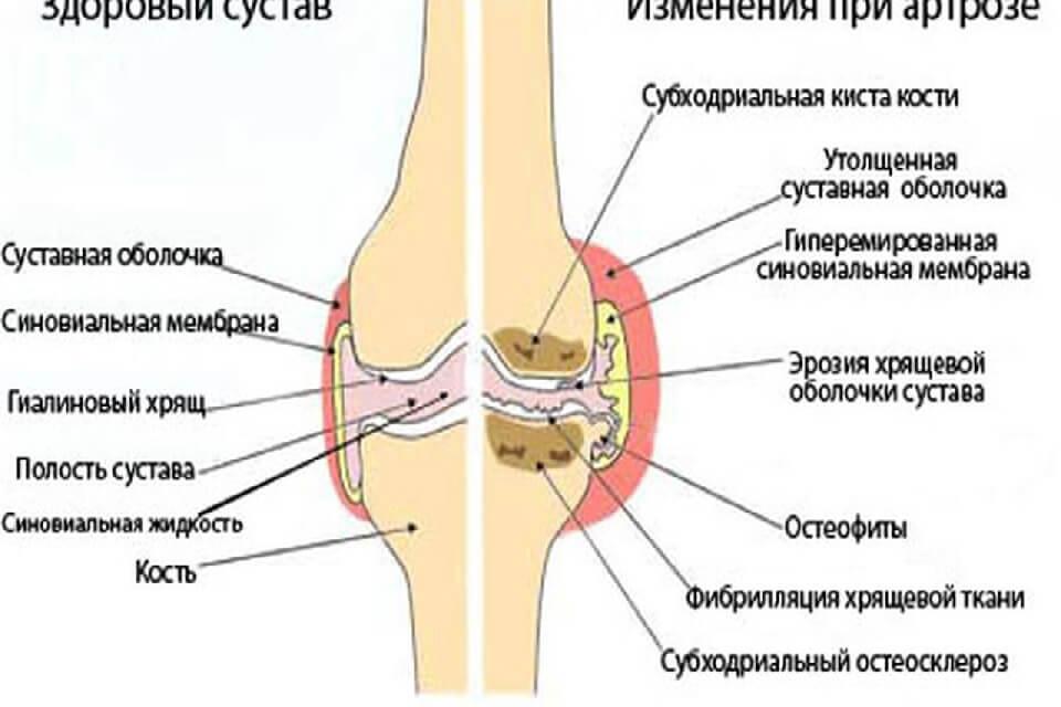 Folyékony térdízület: népi gyógymódokkal végzett kezelés