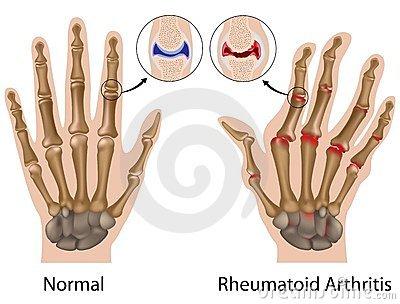 az ujjak ízületei fájnak a munka után