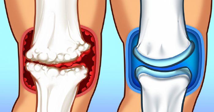 Reumás ízületi gyulladások | TermészetGyógyász Magazin