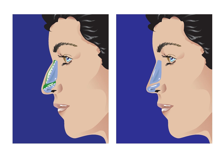 Az orr sérülései