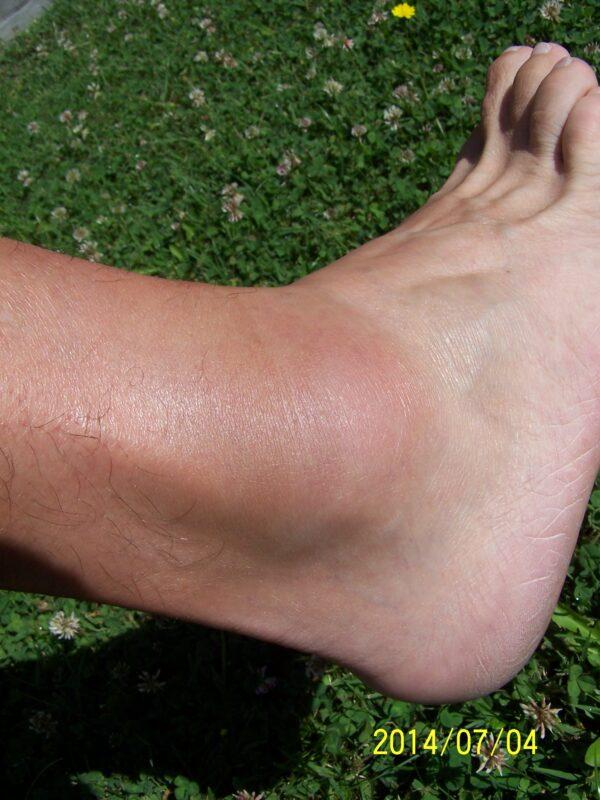 a bokaízület külső területe fáj