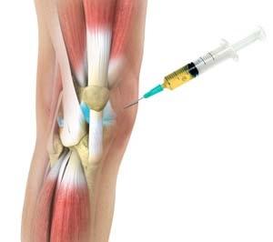 a lábízület bursitisa hogyan kell kezelni hogyan kezeljük az ízületeket zsákmánygal