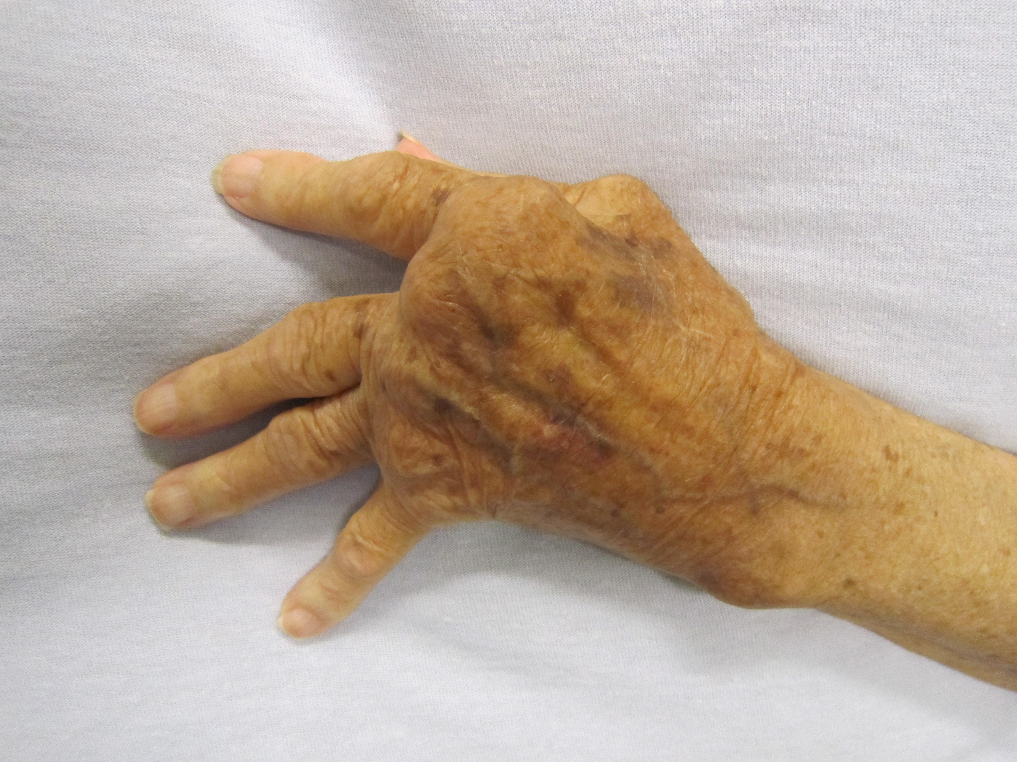 a lábujjak ízületeinek reuma tünetei és kezelése kezelje úgy, mint az ízületeket