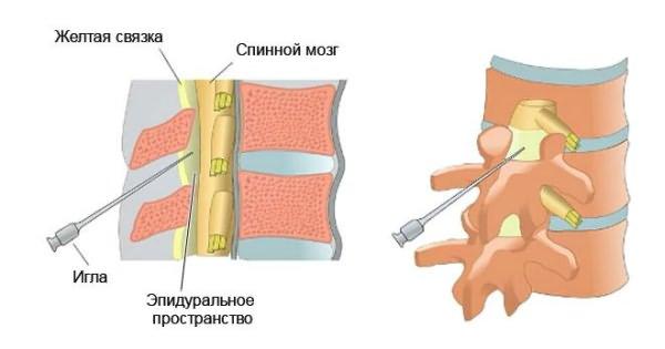 az ágyéki gerincvelő készítmények csontritkulásának kezelése