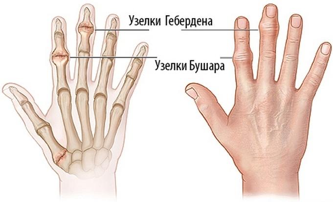 fájdalom a kéz kis ízületeiben diagnosztizálás
