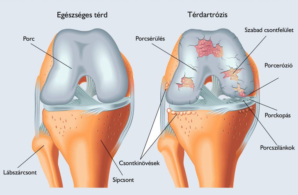 a térd artrózisának kezelése 3-4 fokkal