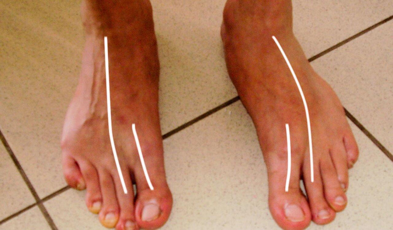 lábfájdalom a láb ízületei