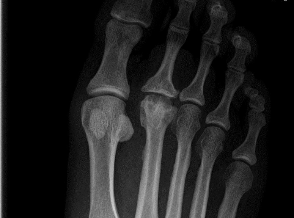 metatarsalis phalangus arthrosis ízületi ízületi gyulladás hogyan lehet csökkenteni a fájdalmat