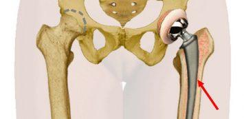 csípőízületi fájdalmak esetén