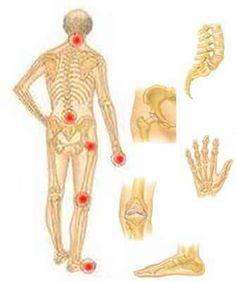 receptek és tippek az ízületi fájdalmakhoz fájó könyökízület kezelése