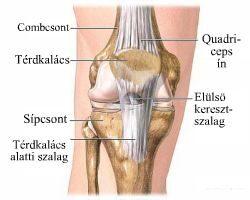 térdízületi oldalsó ínszalagok gyulladása