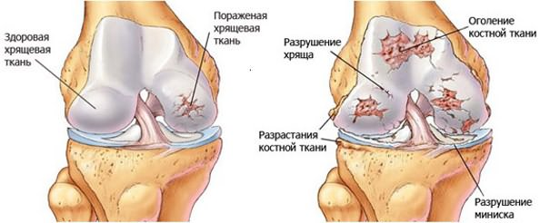 artrózisos vízkezelés fájdalom a csípőpótlás tünetei után
