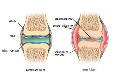 artrózis folyadék a térdízületben ízületi fájdalom a vállban kezelésére