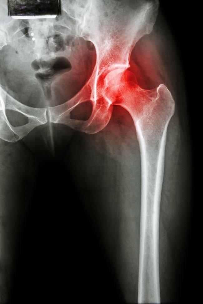 Képalkotó vizsgálatok mozgásszervi betegségekben - Mozgasszervi blog