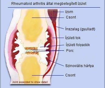 ízületi gyulladás hogyan lehet eltávolítani krónikus bokaízület gyulladás