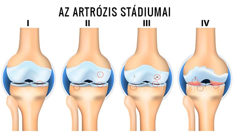 3. fokozatú artrózis kezelése