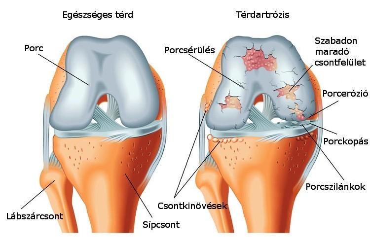 izomfájdalmak és ízületek kezelése kenőanyag térdízületekhez