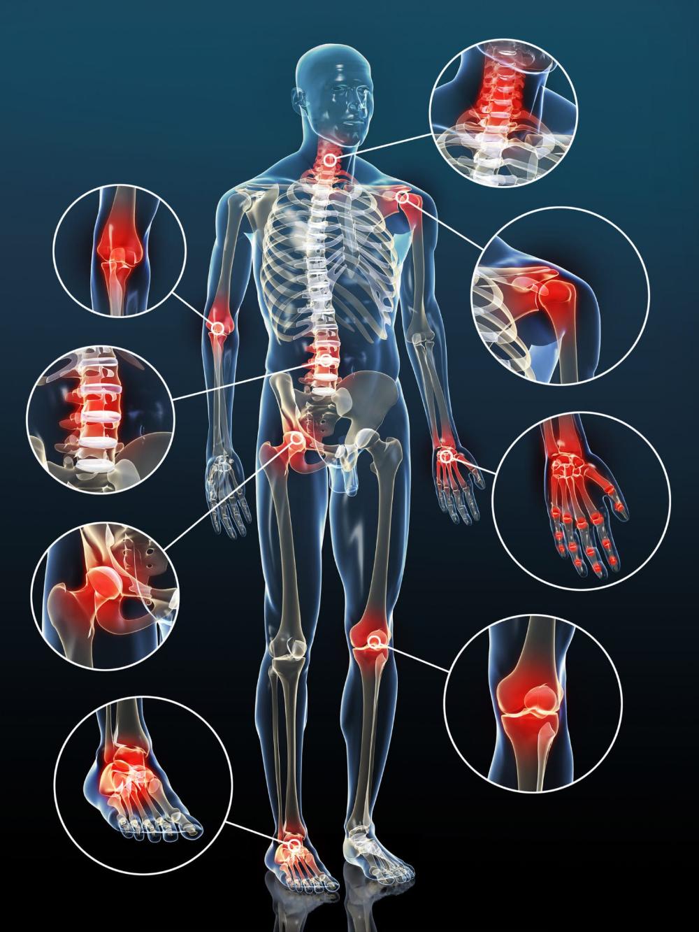milyen gyógyszerek enyhítik az ízületek gyulladását vazodilatáló kenőcsök a nyaki osteochondrozishoz
