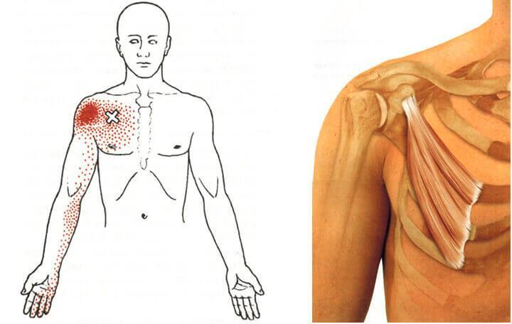 intramuszkuláris ízületi fájdalmak a térdízület gyulladása, úgynevezett