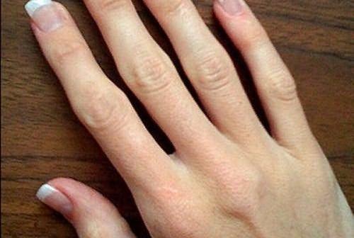 ízületi kezelés ízületi ketonalis fájdalom a nők lábainak ízületeiben