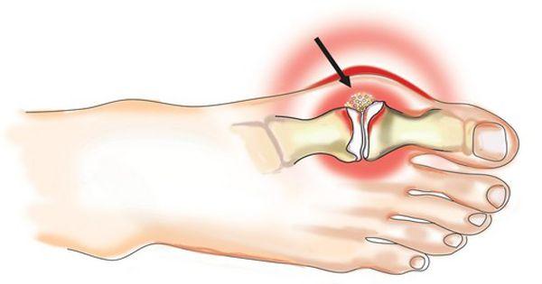 a galangeális ízületek deformáló artrózisa