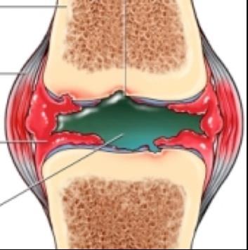 térdszinovitis betegség boka duzzanat artritisz
