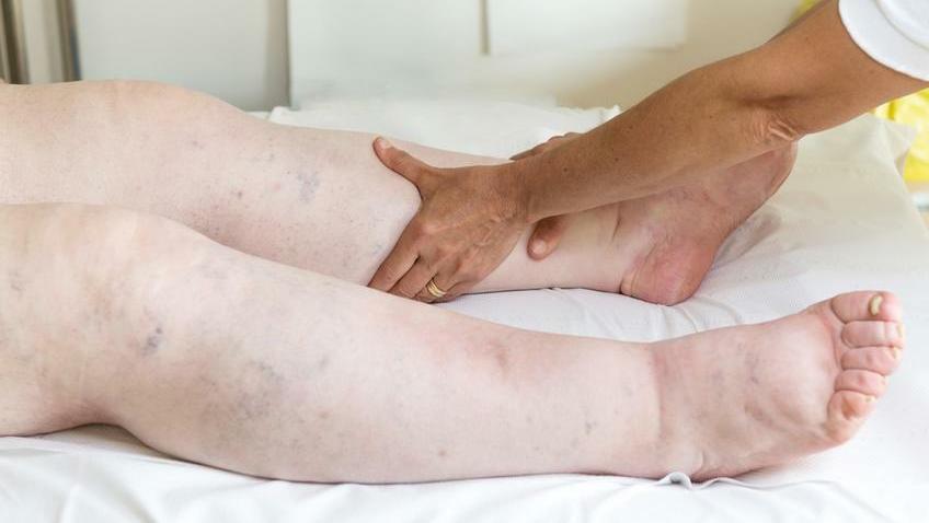 a boka mindkét lába fáj