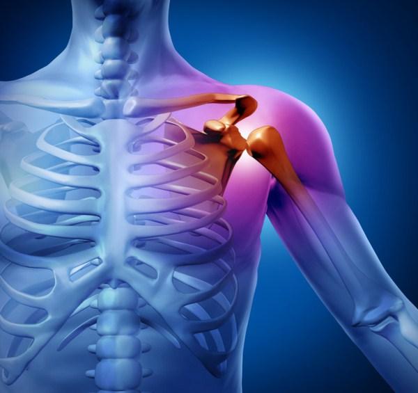 a vállízület ízületi gyulladásának kezelése gyakorlatokkal milyen kenőcs a nyaki csontritkulásért