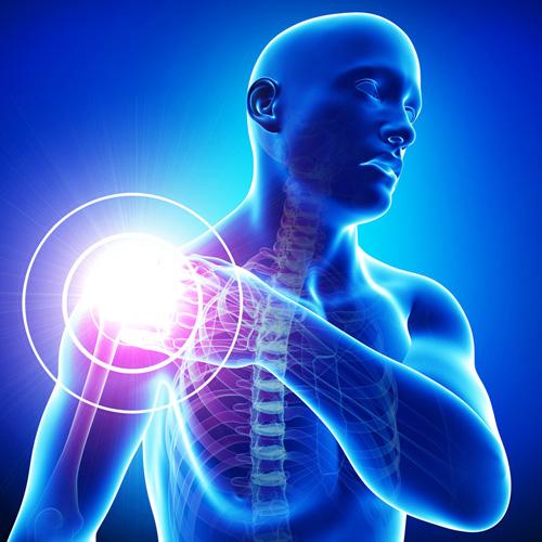 A vállfájdalom jellemző okai | Gyógyszer Nélkül