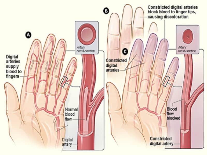 gyógyszerek a karok és a lábak ízületeinek betegségeihez