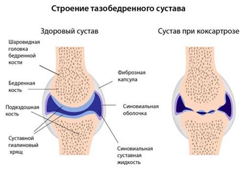 lábízület gyulladásos betegség
