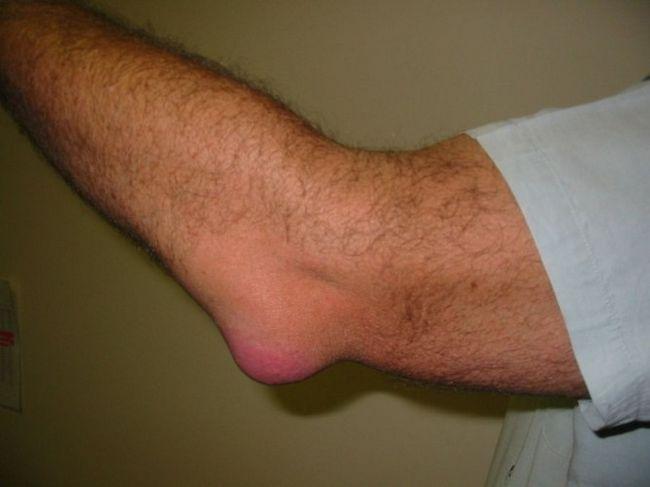 progresszív könyök izületi gyulladás hogyan lehet kezelni a kar ízületének artrózisát