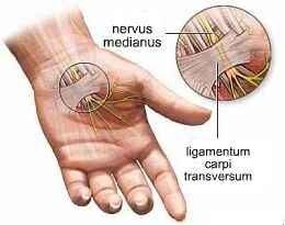 fájdalom az ujj ízületében feszítés közben gyulladáscsökkentő szerek ízületek és izmok számára