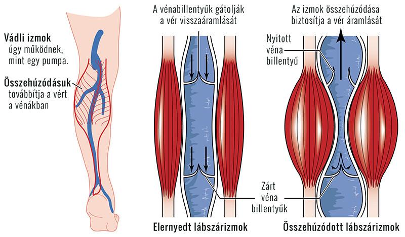 kezelési gyakorlat a boka artrózisában