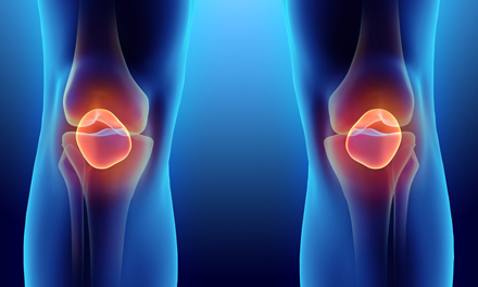 hogyan lehet eltávolítani az ízületi duzzanatot artrózissal szárnyaló ízületek artrózissal