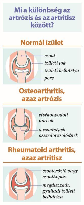 ízületi fájdalom lövés kenőcsök a lábízület fájdalmához