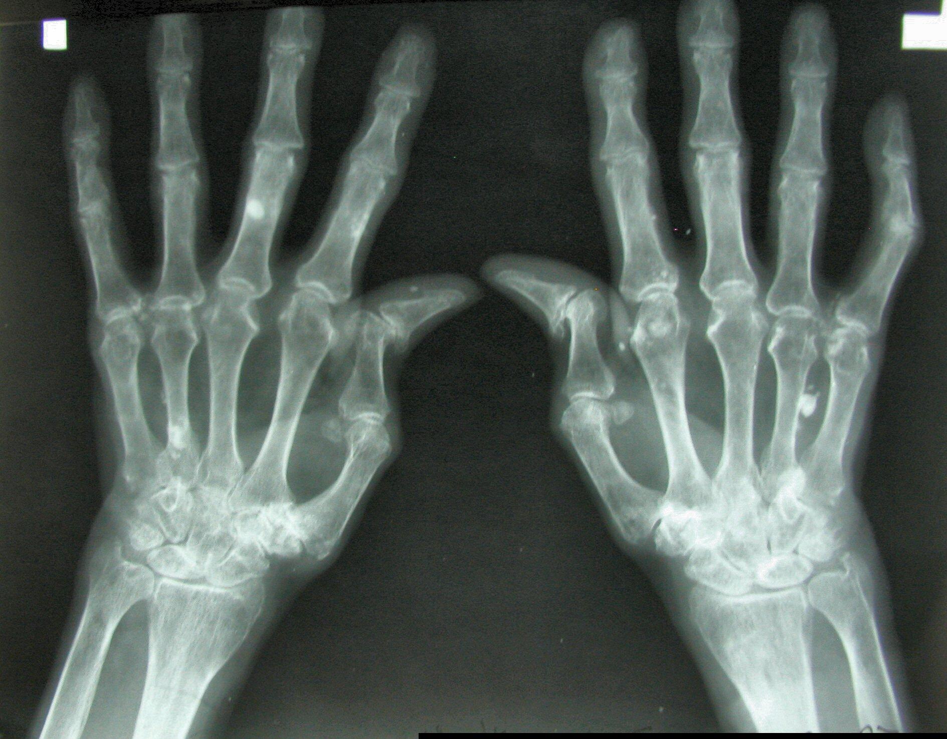 a csípőízület deformáló artrózisa 3. stádiumú kezelés