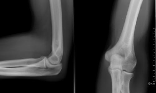 hogyan kezeljük a térdfájdalmakat 1 - 2 fokos artrózis hatékony kezelése