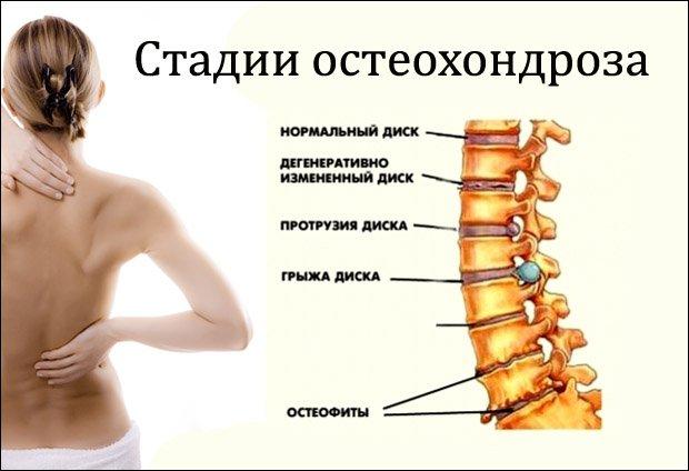 gél méhnyak-osteochondrozisról