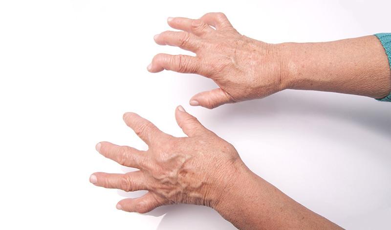 az ízületi gyulladást reumatológus kezeli