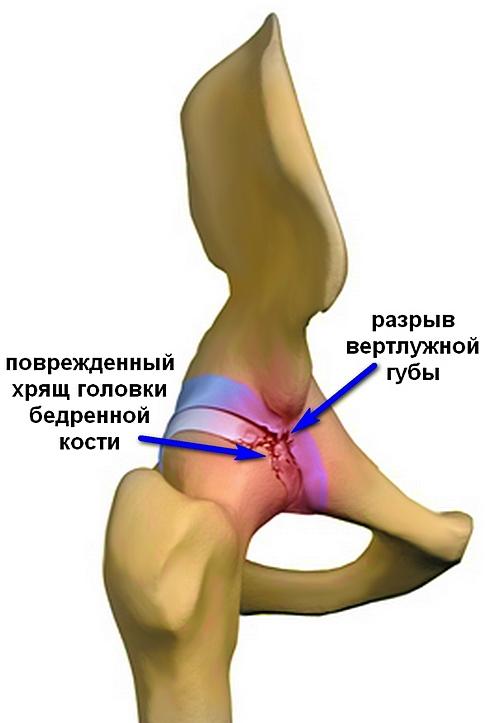 fogyni fáj az ízületek ízületi fájdalom a lábában, a nagy lábujj közelében