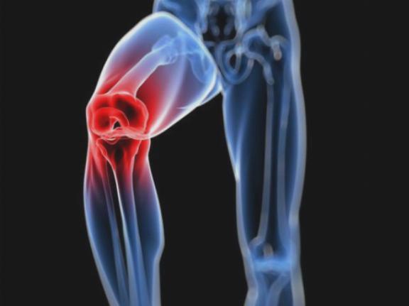 az intraartikuláris folyadék előállítja artrózis kezelést menopauza ízületi betegség