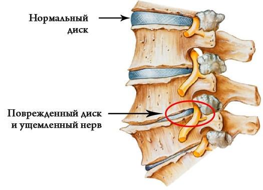 ízületi ízületi kezelés oroszországban
