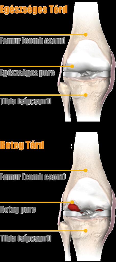 fájdalom a vállízületben a könyökig a bokaízület törése