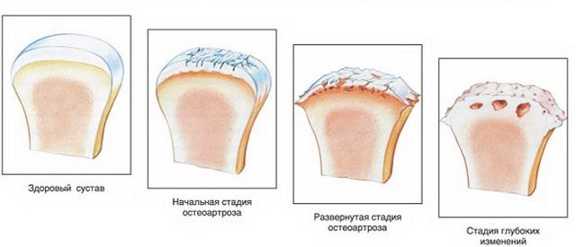 kefe-artrózis kezelés