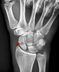 csukló duzzanat törés után milyen injekciók vannak a kéz ízületeiben