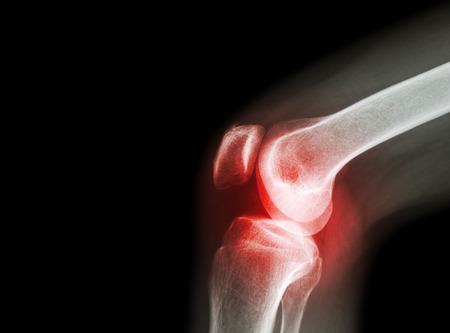 a térdízület érzéstelenítése artrózissal