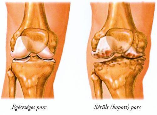 Bokaízületek osteoarthrosis kezelése - Az arthrózis előfordulása