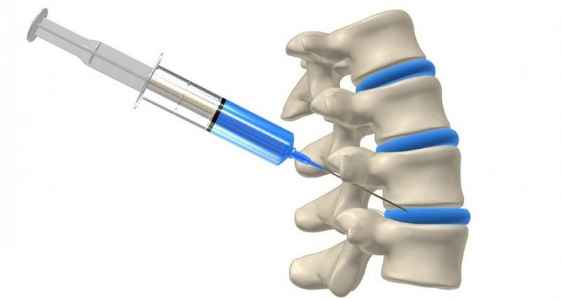 Erős fájdalomcsillapító hátfájás. Alsó hátfájáscsillapító tabletták