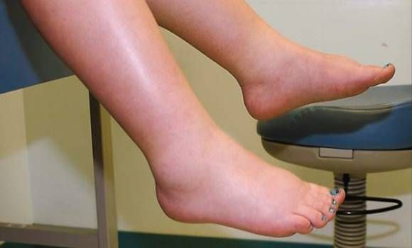 lenmag ízületi betegségek kezelésére ízületi és ízületi betegség